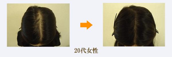 20代女性薄毛症例画像