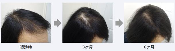 女性薄毛治療