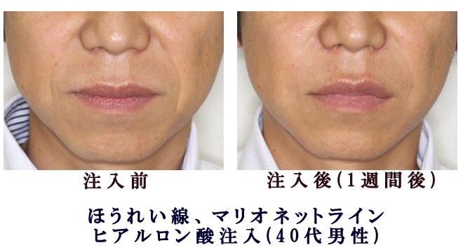 ほうれい線、マリオネットライン-ヒアルロン酸注入(40代男性)