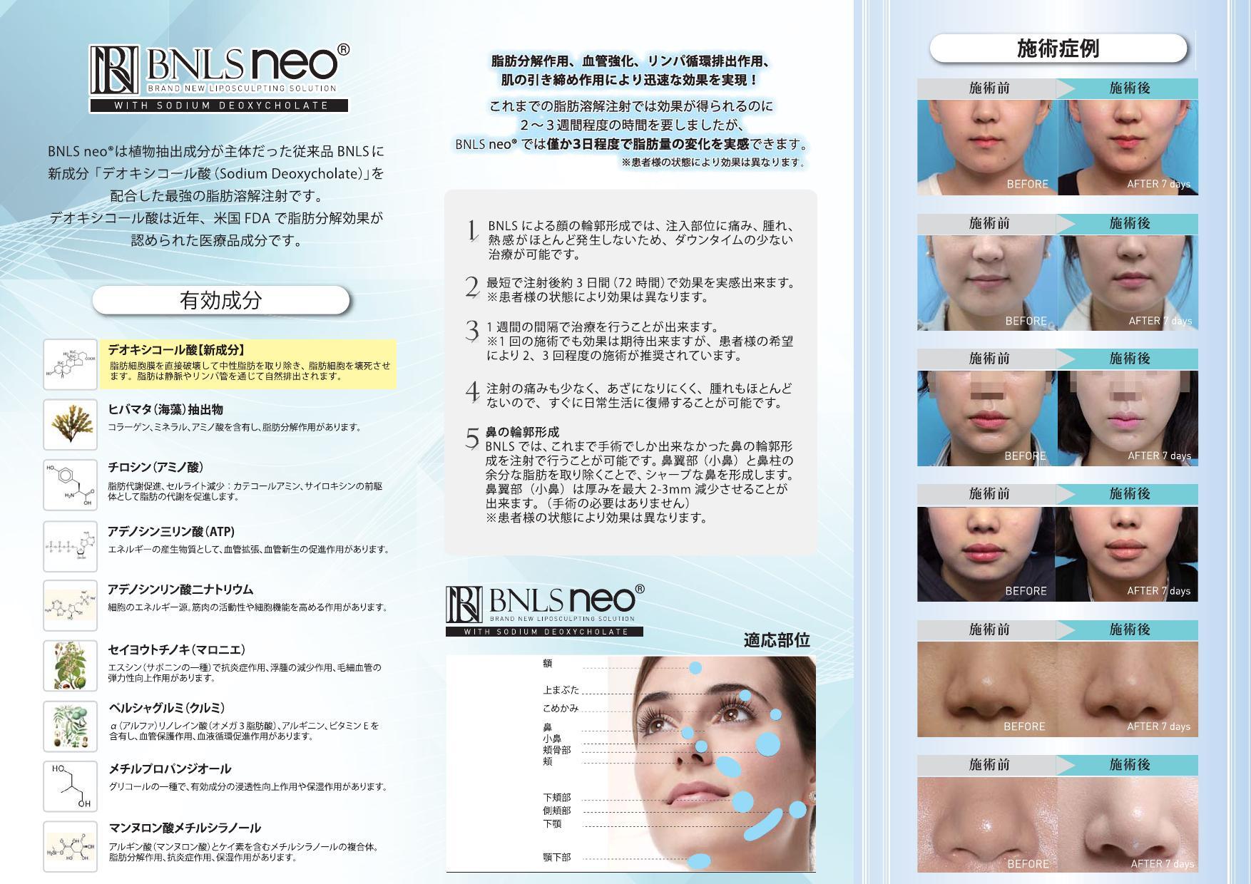 BNLS Neo_000002